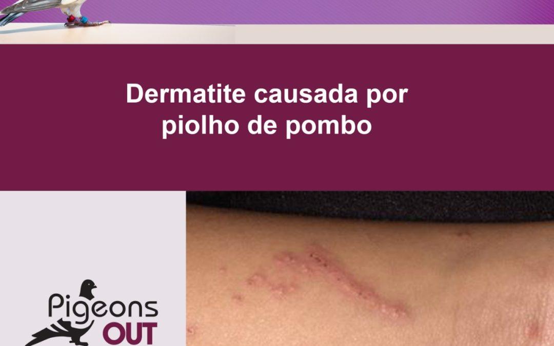 Dermatologista explica sintomas da doença do piolho do pombo